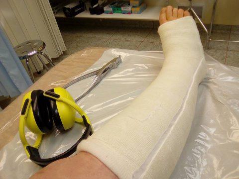 voyager avec jambe cassée plâtre